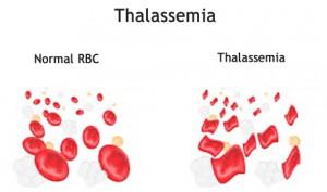 thalassemia-treatment