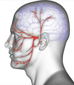 trigeminal_neuralgia