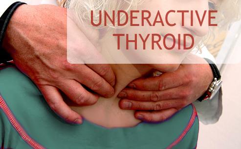 underactive thyriod