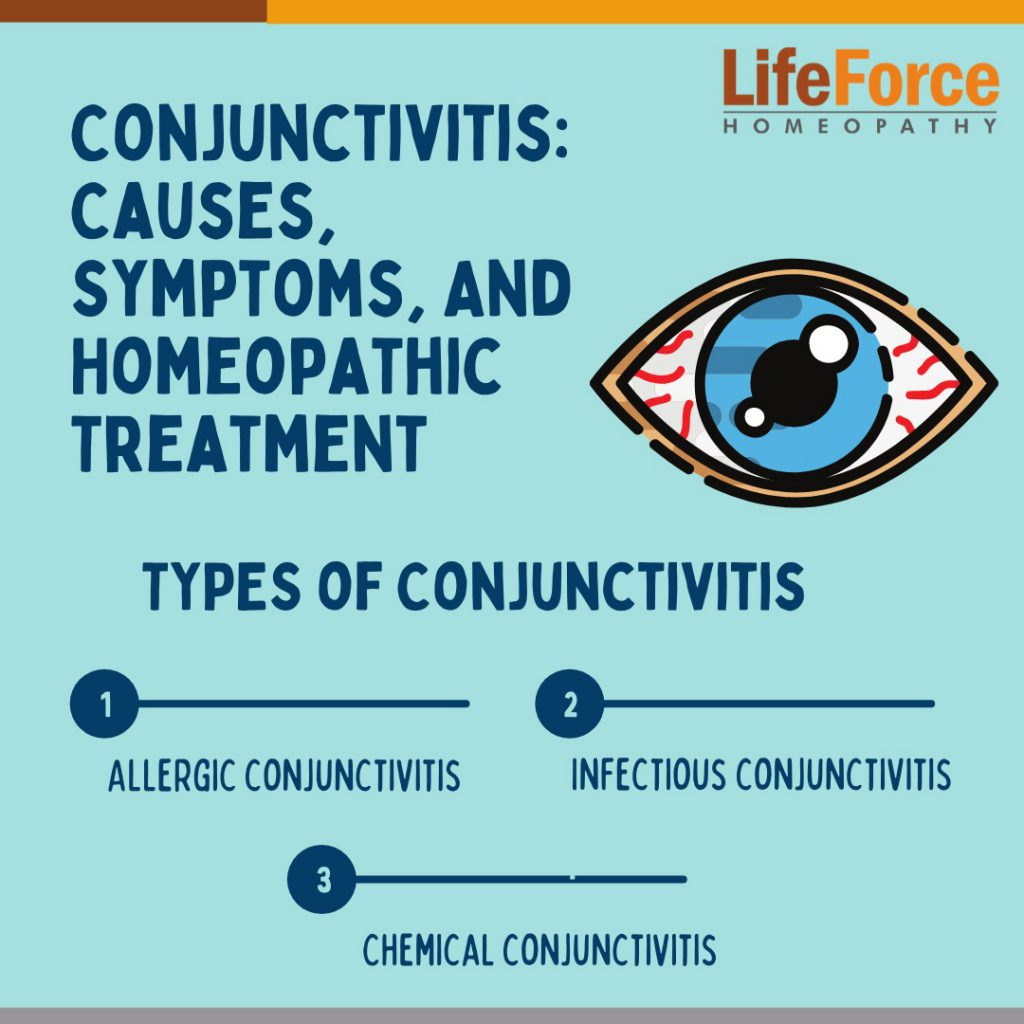 Conjunctivitis: Causes, Symptoms, And Homeopathic Treatment