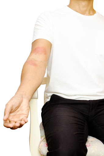 Looking For Right Diagnosis & Treatment For Winter Rash? It's Just A Click Away!