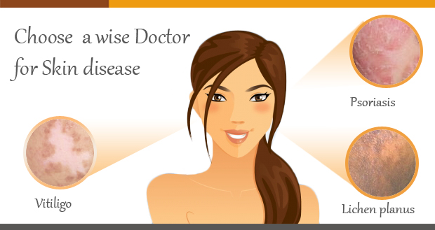 Choose a wise doctor for skin treatment