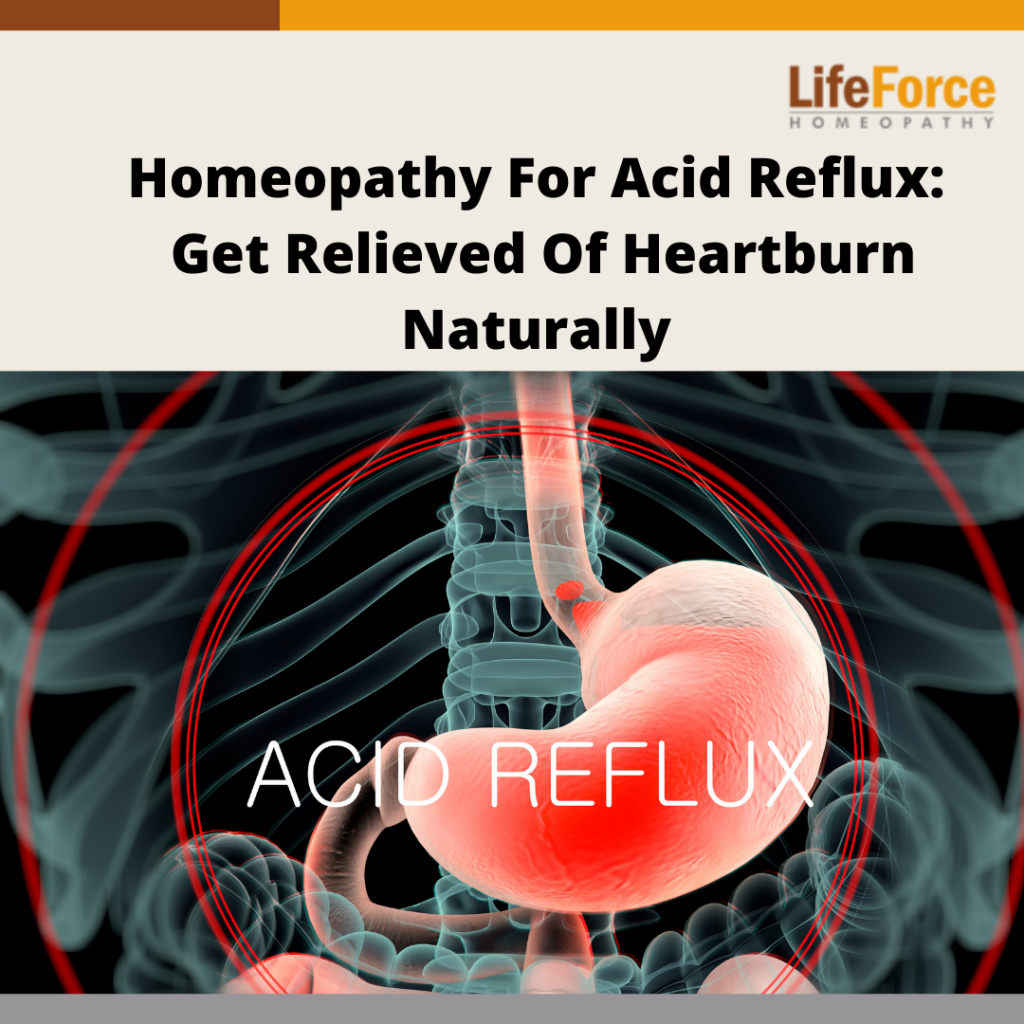 Homeopathy For Acid Reflux: Get Relieved Of Heartburn Naturally