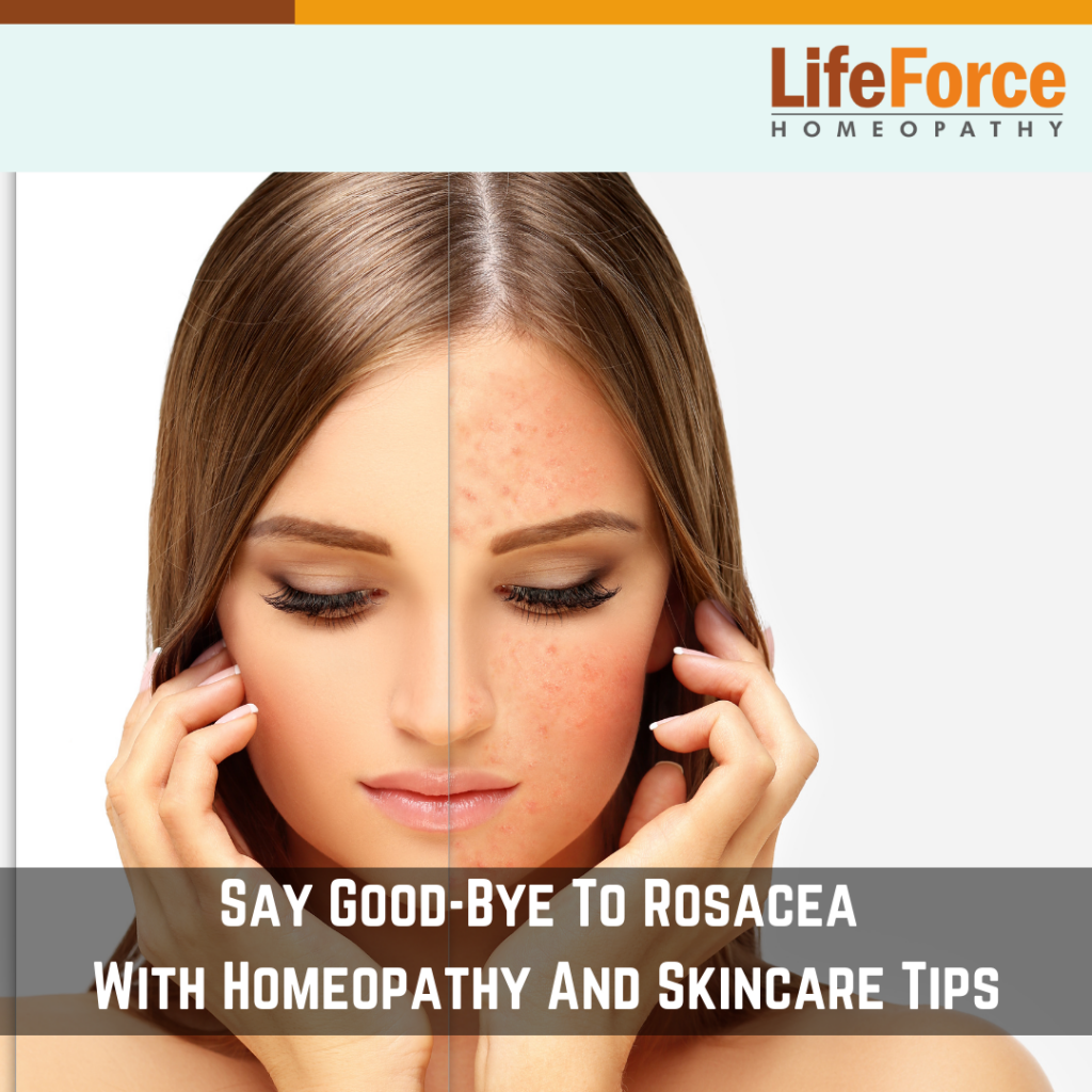 Say Good-Bye To Rosacea With Homeopathy And Skincare Tips