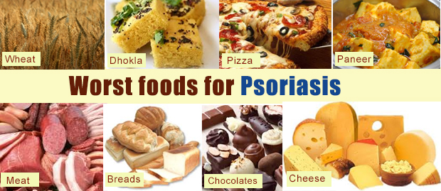 Foods To Avoid With Psoriasis