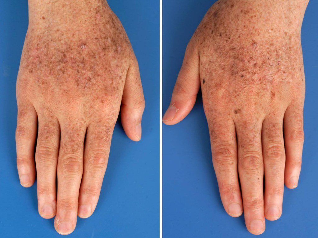 Everything You Need To Know About Xeroderma Pigmentosum
