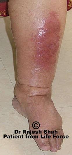 cellulitis ontsteking