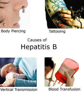 Causes of Hepatitis B