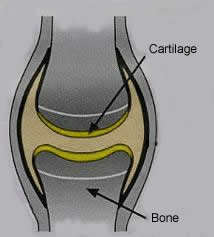 Osteoarthritis in Joints