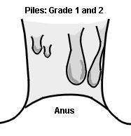 Piles grade 1 and 2