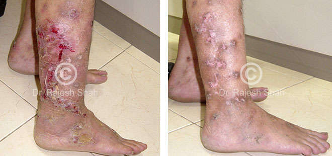 pyoderma_legs_before_and_after