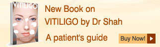 Book on Vitiligo by Dr Shah