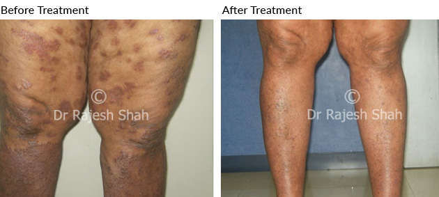 Steroid dependent psoriasis is indeed a challenge and