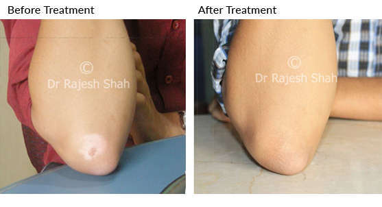 Vitiligo On Lips Elbows And Thighs Has Recovered 100 Thanks To Dr Rajesh Shah