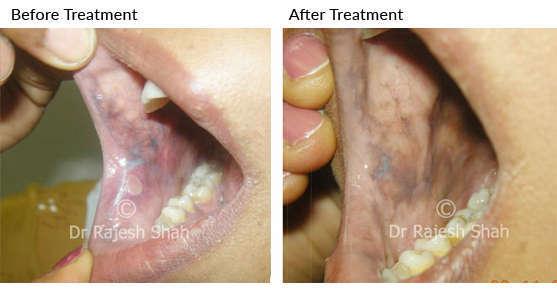 Oral lichen planus on cheeks inner side