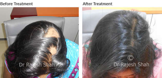 scalp cured with homeopathy