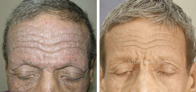 atopic  dermatitis on face