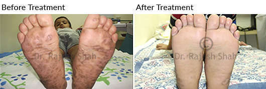 psoriasis on soles of feet
