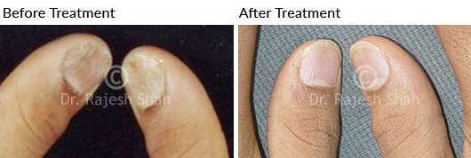 psoriatic nails