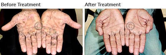 psoriasis on palm
