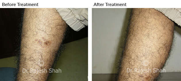 Warts on Legs treated with homeopathy