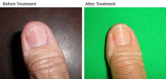 lichen_planus on right thumb
