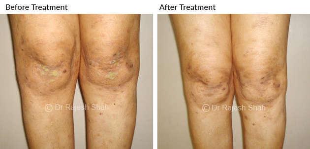 lichen planus on knee