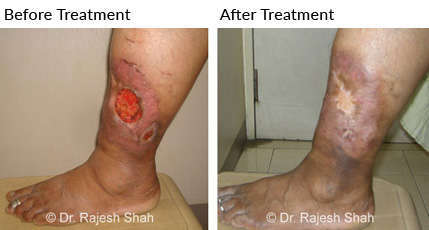 Non healing ulcer in leg was treated with homeopathic medicines