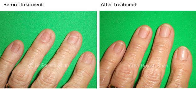 lichen planus on left hand