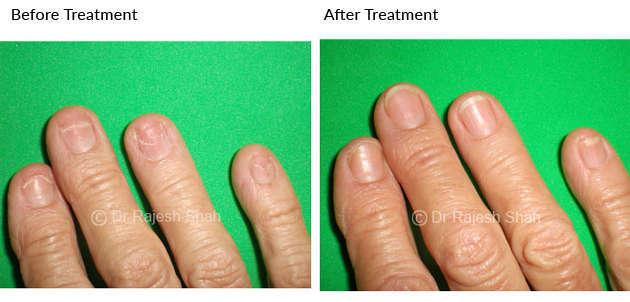 lichen planus on right hand