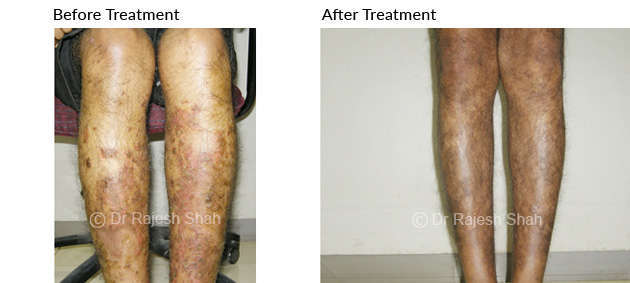photos of psoriasis on legs