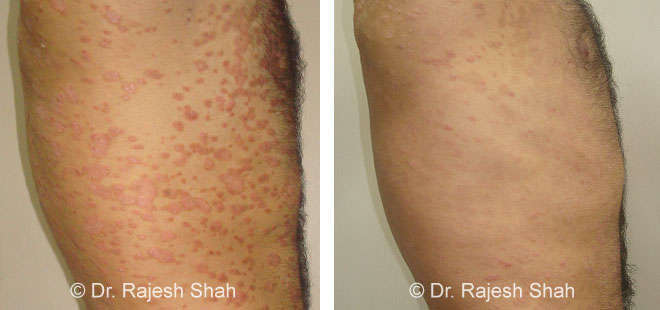 psoriasis photos side