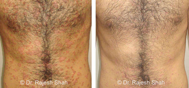 Psoriasis on stomach before after treatment