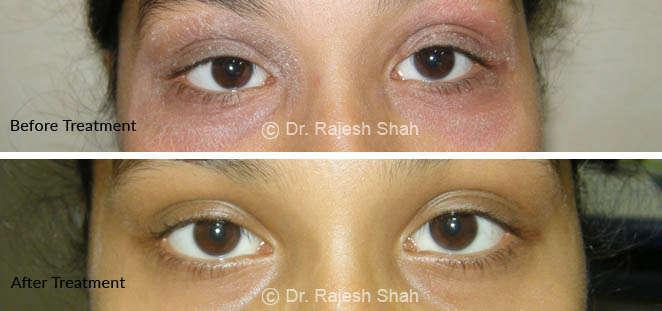 psoriasis on around eye