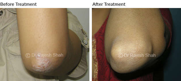 psoriasis on extensor surface of right elbow