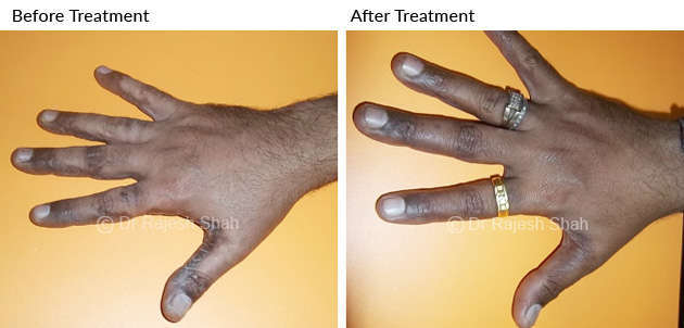 psoriasis on hand 02