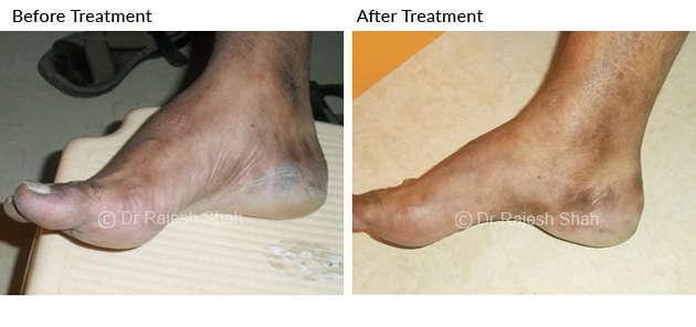 psoriasis on leg