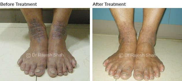 psoriasis-on-leg