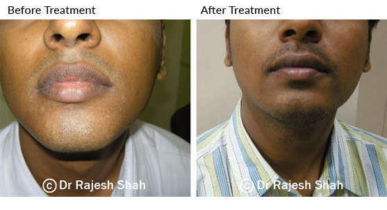 vitiligo on face