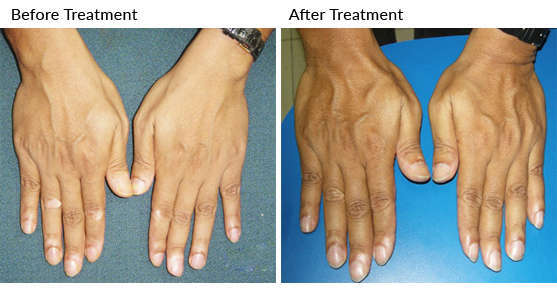 40 Year Old Scientist With Bilateral Symmetrical In Pattern Vitiligo On Elbow Knees Finger Tips And Lower Lips Happy With Treatment Results