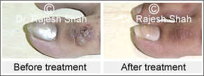 Before after treatment photo of Warts on right foot dorsum