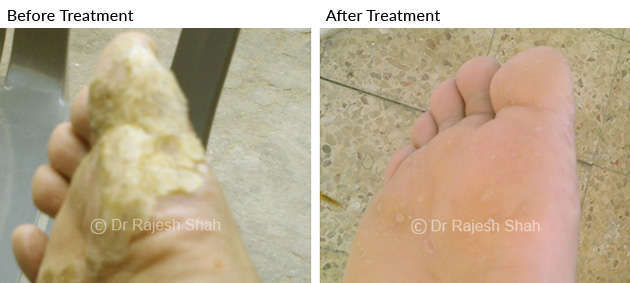 Warts on Feet Soles & Nails Before After Treatment photo