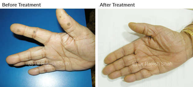 Warts in palm before and after treatment photo