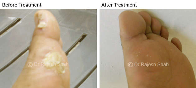 Warts on Toe Fingers and Sole Before and after treatment photo
