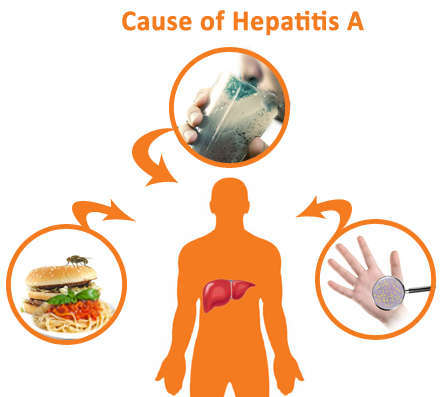 Hepatitis A treatment