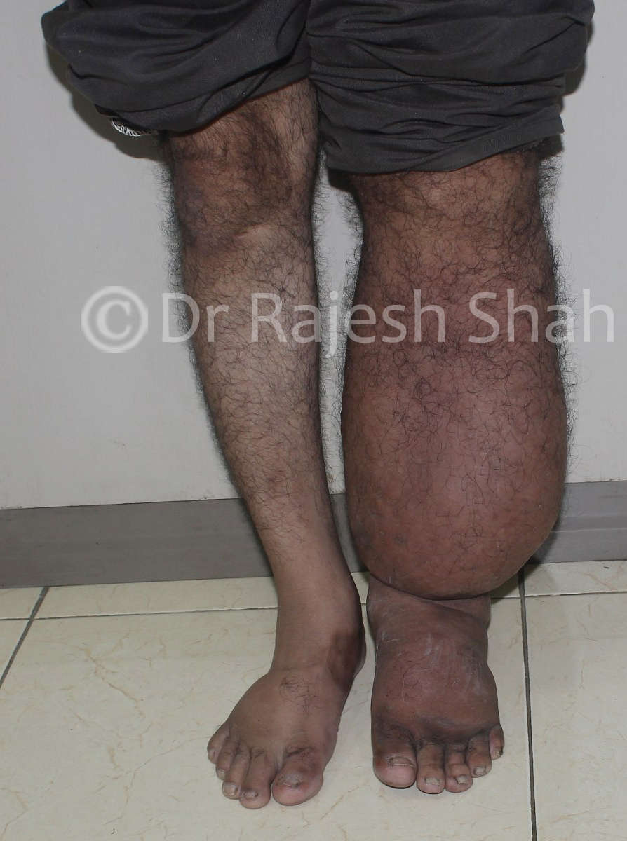 Symptoms of Elephantiasis on Foot & Homeopathic Treatment