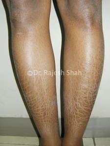 Ichthyosis on legs