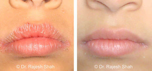 Cheilitis Treatment, Causes, Types & Homeopathic Treatment