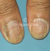 Lichen planus on finger
