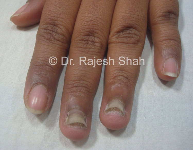 Onychomycosis Treatment Causes Diagnosis Homeopathic